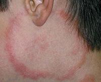 Трихофития — чем и как лечить кожу головы при этом заболевании
