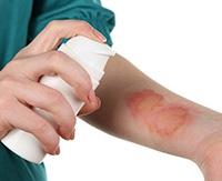 Атопический дерматит у кормящей женщины: правила лечебной диеты