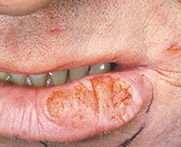 Каковы симптомы плоскоклеточного рака кожи и как его можно вылечить?