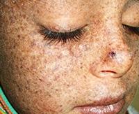Пигментная ксеродерма: риски развития онкопатологии кожи и продолжительность жизни