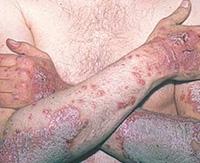 Пустулезный (экссудативный) псориаз: лечение тяжелой формы заболевания