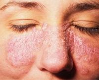 Как и чем очистить кожу от псориаза на лице?