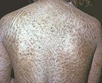 Формы проявления ихтиоза кожи и методы лечения заболевания