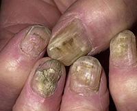 Как определить и вылечить грибок ногтей на руках?