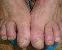 Грибок ногтей — эффективные методы лечения онихомикоза в домашних условиях