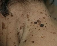 Лечение кератомы в домашних условиях: проверенные средства народной медицины