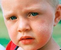 Причины и лечение витилиго у детей разных возрастов