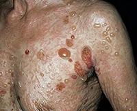 Что такое буллёзный дерматит и методы его лечения