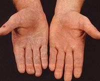 Что такое дерматофития и как ее лечить, особенности паховой дерматофитии