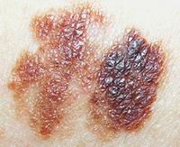 Что такое меланома кожи и лечение злокачественного новообразования