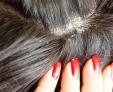 Самые распространенные заболевания кожи головы и их лечение