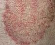 Что такое дерматомикоз, симптомы, причины развития, эффективное лечение