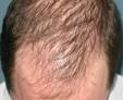 Диффузное выпадение волос — лечим спящие волосы у мужчин и женщин
