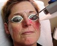 Лечение розацеа на лице препаратами и мазями