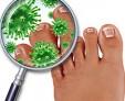 Виды рубромикоза, методы лечения грибкового заболевания
