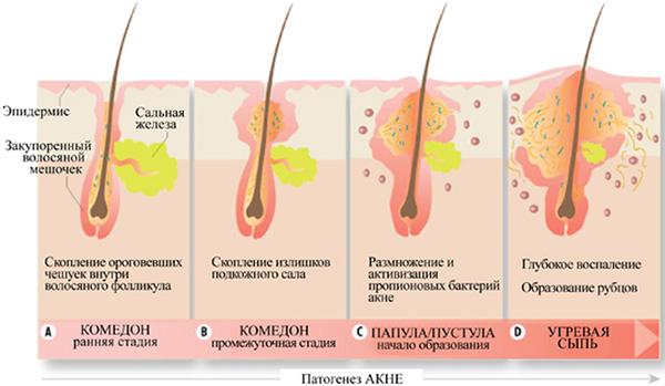 Нарушение работы сальных желез причины и лечение Эристону