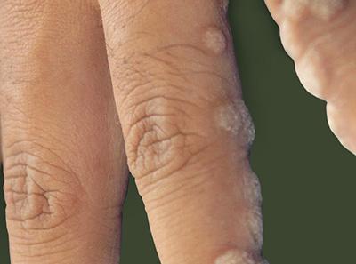 Бородавки на ногах фото и лечение народными средствами