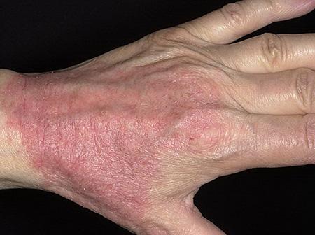 atopicheskiy-dermatit-lechit-sekstafagom