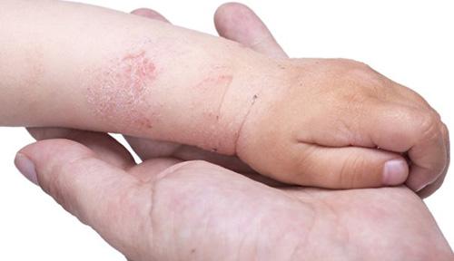 Эксфолиативный дерматит риттера