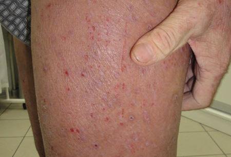 Дерматит: симптомы, виды и лечение кожного дерматита у взрослых