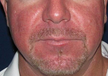 Гиперемия кожи лица создает человеку неудобства эстетического характера