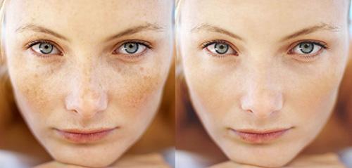 Лимонная маска не только выравнивает цвет кожи, но и придает ей здоровый и ухоженный вид