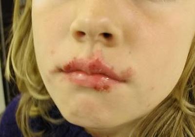 Кожные заболевания кожи лица: виды болезней у детей и взрослых