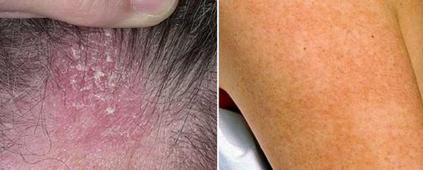 Гиперкератоз кожи головы