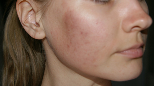 гиперкератоз лица кожи фото