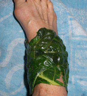 Капустный лист можно применять сразу же после получения ожога - он охлаждает кожу и успокаивает ее