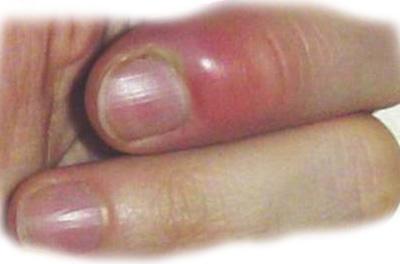 Панариций пальца руки: лечение подкожного, подногтевого панариция у ребенка после вскрытия