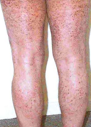 Мастоцитоз у взрослых и детей: причины и лечение системного мастоцитоза кожи
