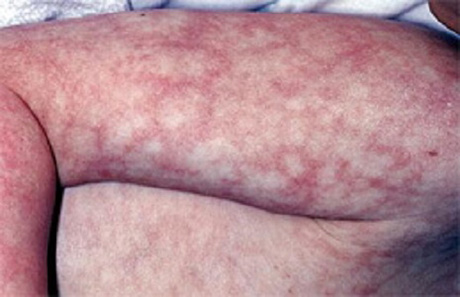 обязана предоставить лихорадка вазодилятация кожные покровы пациента холодные воронеже можно