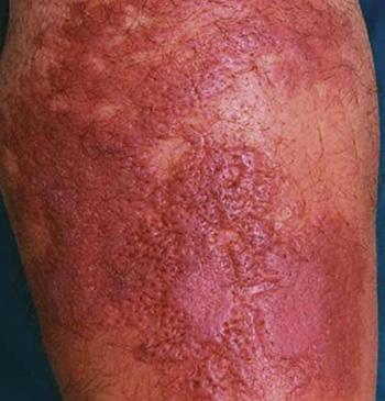 Рожа на ноге появляется чаще у людей, которые ведут малоактивный образ жизни