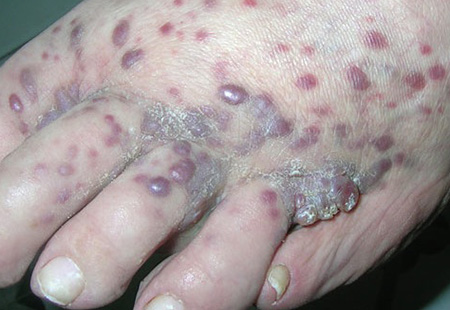 симптомы Саркомы Капоши на стопах при ВИЧ