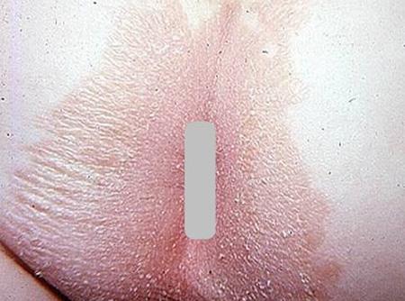 Болезни с кожными проявлениями в анальной области
