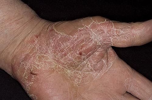 Хроническая экзема кистей рук лечение