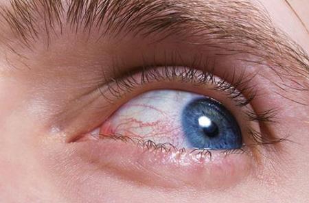 Чирей на глазу лечение в домашних условиях