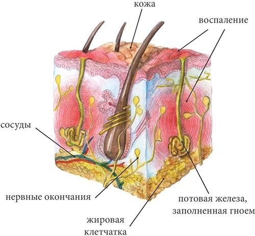 Что такое гидраденит, симптомы и лечение болезни сучье вымя под мышкой