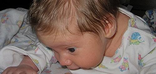 Гипергидроз у детей причины сильного пота и запаха у ребенка