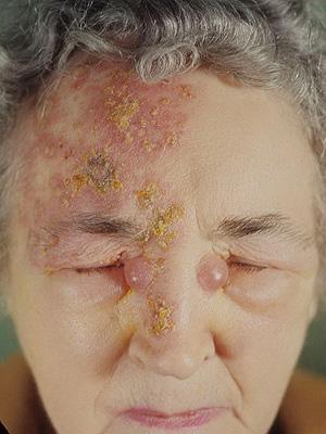 Поражение кожных покровов головы и лица с трудом поддается лечению