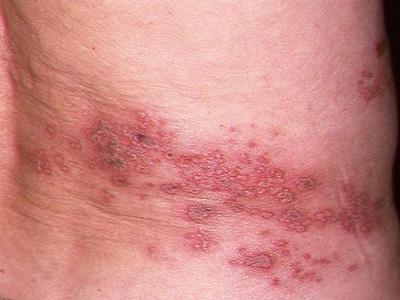Чтобы рубцы не остались на коже, нужно проводить правильное лечение