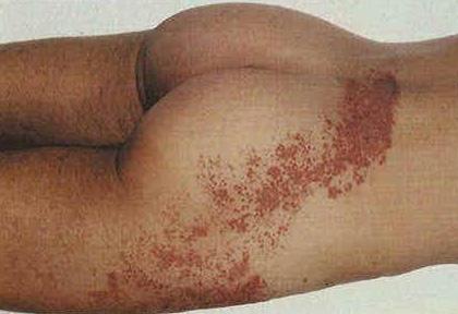 Зачастую после опоясывающего лишая у пациентов остаются глубокие шрамы, напоминающие ожоги