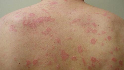 Розовый лишай: причины и лечение розового лишая Жибера у человека