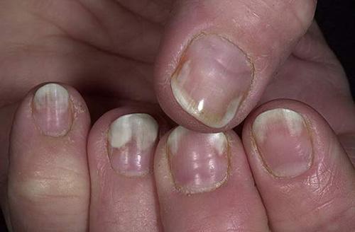 Дизайн ногтей: «Жидкие камни». Техника жидкие камни
