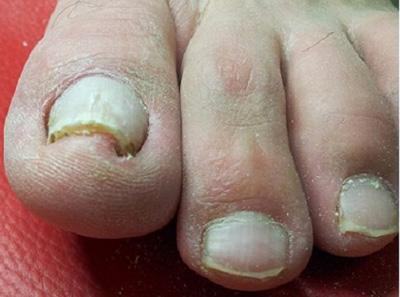 Грибок ногтей (онихомикоз) на руках: лечение в домашних условиях, народные методы