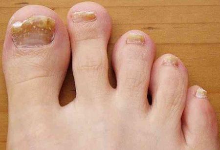 Как проводится домашнее лечение грибковых заболеваний ногтей ног