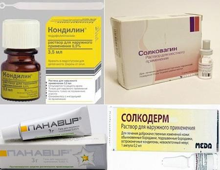 Папилломы у мужчин лечение в домашних условиях пошагово