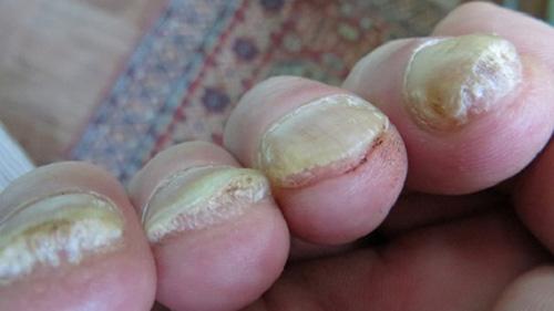 Псориаз ногтей на руках (фото). Лечение как отличить от грибка