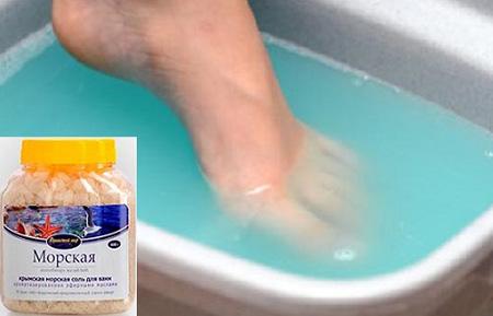 Псориаз на ногах: лечение мазями псориаза кожи на стопах